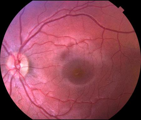 Scan Of A Normal Eye Epiretinal Membrane