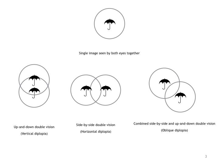 Double Vision Diagram