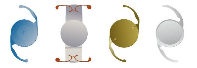 intra ocular lens for refractive lens exchange