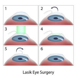 lasik eye surgery diagram